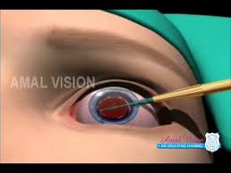 What Can Cause Blindness What Causes Blindness Youtube