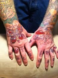 worst tattoo removing disasters yuck u003e u003e u003e see more at the photo