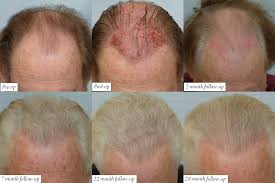 hair transplant month by month pictures hair loss forum expectations after hair transplant surgery