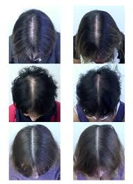 kalojoni seed oil hair scalp this supplement combo reduced hair loss in 90 of the women who