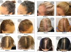 rogaine for women success stories when is the best time to apply minoxidil when colouring your hair