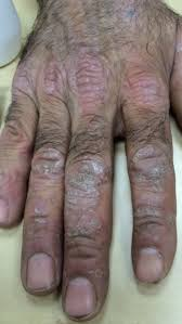 psoriasis treatment psoriasis treatment