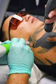 tattoo removal inc 7 most frequently asked questions from tattoo removal patients
