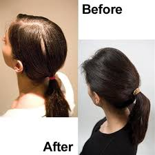 viviscal before and after hair length afro viviscal before and after hair length afro updated haircare