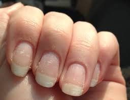 scratched up peeling weakened ruined natural nails from a