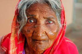 How Do People Get Blind What Is Avoidable Blindness Iapb