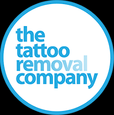 tattoo removal company