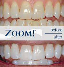 brightwhite smile teeth whitening light teeth whitening cost types