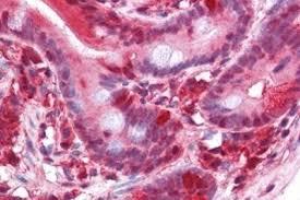 pawr par4 antibody 3g9h7 4h12e9 nbp1 52416 novus biologicals