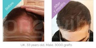 hair transplant month by month pictures hair transplant turkey the no 1 choice for hair transplants in turkey