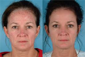 intense pulsed light therapy ipl treatment newark intense pulsed light wilmington laser skin