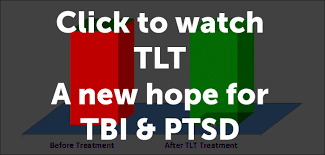 light therapy for ptsd laser md ptsd tbi treatment with tlt transcranial laser therapy
