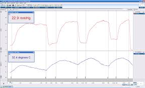 oxford optronix oxygen monitors