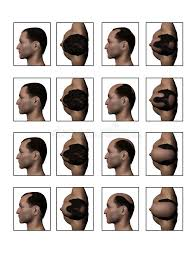 different types of receding hairlines balding receding hairline stock illustration illustration of bold
