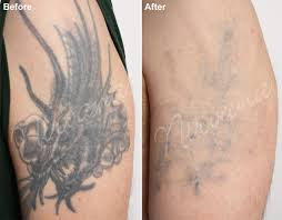 43 best tattoo removal images on pinterest latest tattoos