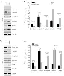 iqgap1 expression in hepatocellular carcinoma predicts poor