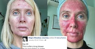 Do Tanning Beds Cause Cancer This Woman U0027s Graphic Selfies Bring The Skin Cancer Risks Of