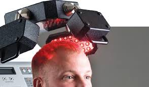 low level light therapy hair low level laser therapy for hair loss avoid my mistakes