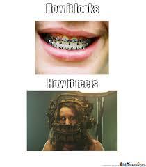 Braces Meme Girl - braces fucking hurt funny pinterest
