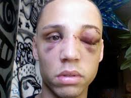 Light Skin Man 26 Year Old Man Beat Down Outside A Ny Mcdonalds Because He U0027s