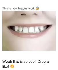 Brace Face Meme - 25 best memes about braces braces memes