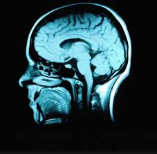 Cortical Blindness May Result From The Destruction Of What Happens Immediately After The Injury Brainline