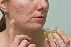 how to get rid of acne scars quickly and naturally livestrong com