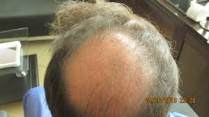 complications and difficult cases international society of hair