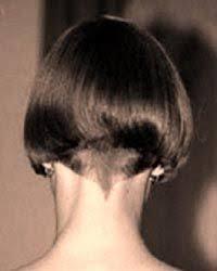 shingling haircut the 25 best shingles eye ideas on pinterest shingles in the eye