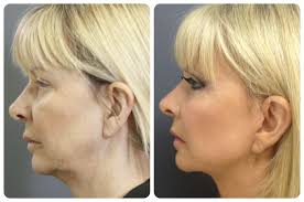 best hairstyles for sagging jowls mini face lift perth medaesthetics