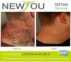 laser tattoo removal in birmingham