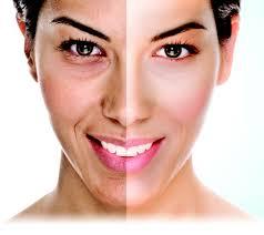news skin care microderm u0026 ipl dermamed solutions part 3