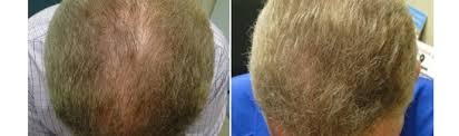 for hair prp treatment for hair loss bucks montgomery county