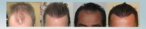 fue haircuts hair transplant