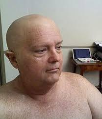 professional bald cap bald cap