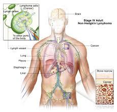 Female Abdominal Anatomy Pictures Non Hodgkin Lymphoma Treatment Pdq U2014patient Version