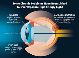 blue light and macular degeneration why is blue light bad for our health iris blue light