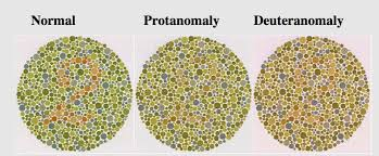 Most Common Colour Blindness Colour Blindness