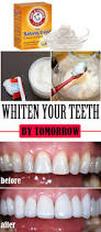 best 20 home remedy teeth whitening ideas on pinterest white