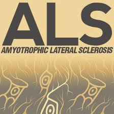 Challenge Explained What Is Als The Challenge Explained