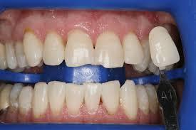 zoom whitening dr andrew yang general u0026 cosmetic dentistry