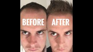 hair transplant costs in the philippines get a good quality hair transplant in the philippines youtube