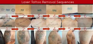 laser tattoo removal sydney picoway price guarantee
