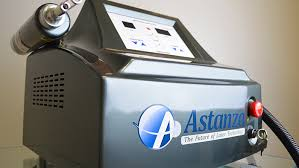 astanza q switched tattoo removal laser equipment