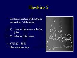 Subtalar Joint Fracture Fractures Of The Talus And Subtalar Dislocations Ppt Video
