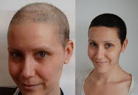 rate of hair growth after chemo biotin for hair growth how much to take dosage 1000 mcg results