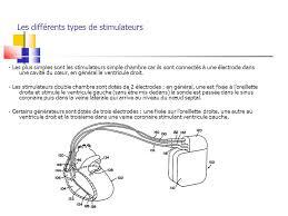 pacemaker chambre défibrillateurs et stimulateurs implantables pacemaker dai