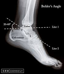 Anatomy Of The Calcaneus Anatomy Critical Angle Of Gissane For Calcaneus Fractures