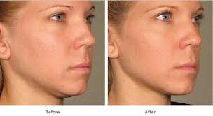 how to make a double chin look less noticable eith hair double chin removal miami md ageless solutions