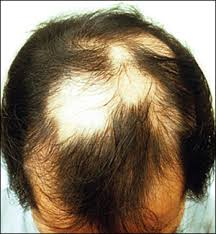 pubic hair disappearing diagnosing and treating hair loss american family physician